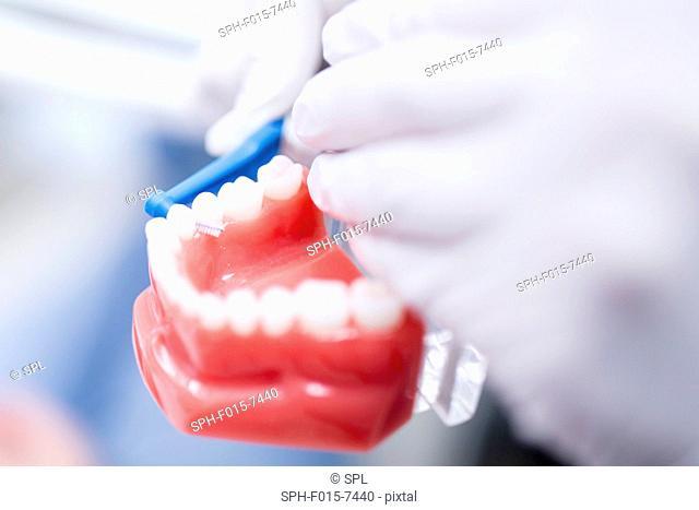 Dentist demonstrating using an interdental brush, close-up