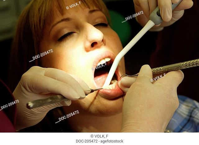 professional tooth care