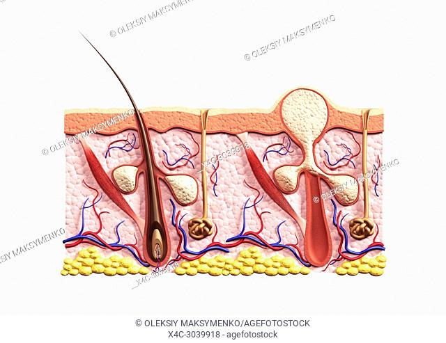 Cross section of skin showing structure of a healthy hair follicle with and sebaceous glands and a whitehead acne pimple filled with sebum, pus or white cells