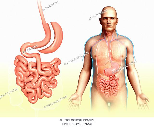 Sleeve gastrectomy, illustration