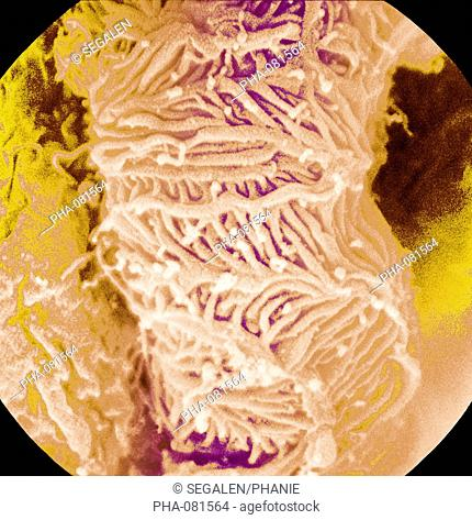 Scanning electron micrograph SEM of a glomerulus. On the surface, the ramifications of the podocytes which filter the blood and produce urine