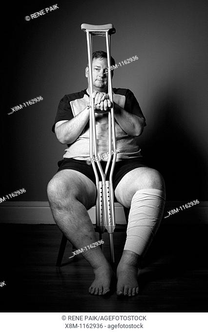 After surgery, a man with a surgically repaired broken leg with crutches